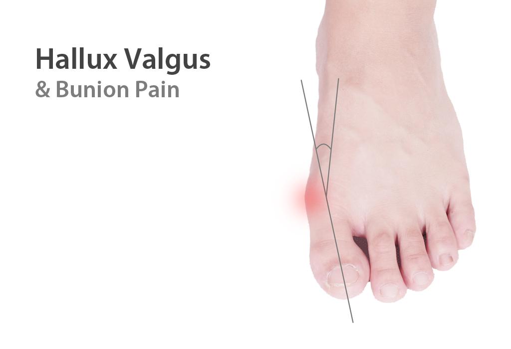 Современный метод удаление косточек на ногах лазером